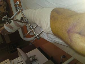 Click image for larger version  Name:Scott's leg.jpg Views:180 Size:59.2 KB ID:20771
